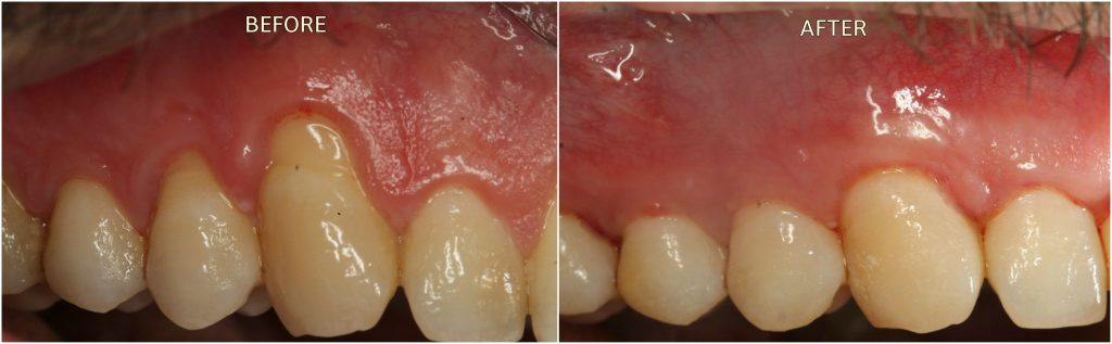Receding Gums in London Treatment Before and After