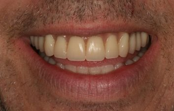 All-on-4-Implants-London-after