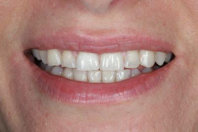 Teeth Spacing After