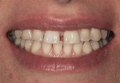 Teeth Spacing Before