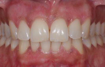 laser gum bleaching