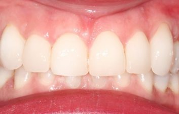 Veneers London Dentist