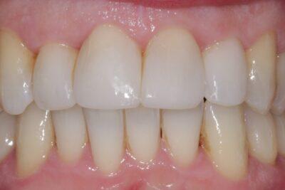 London dentist after teeth whitening