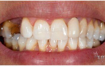 after enlighten whitening london dentist