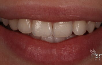 after grey tooth whitening london dentist