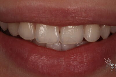internal tooth whitening finchley dentist after