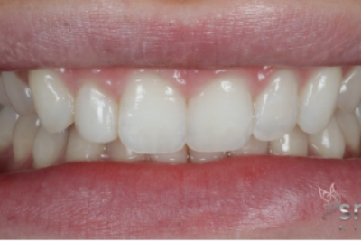 after invisalign and bonding london dentist