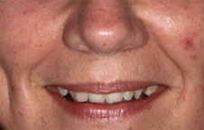 Dental Treatment London After