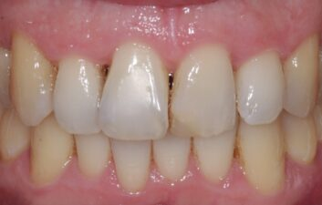 Before teeth whitening and bonding