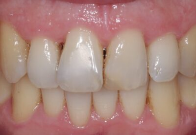 London dentist before teeth whitening