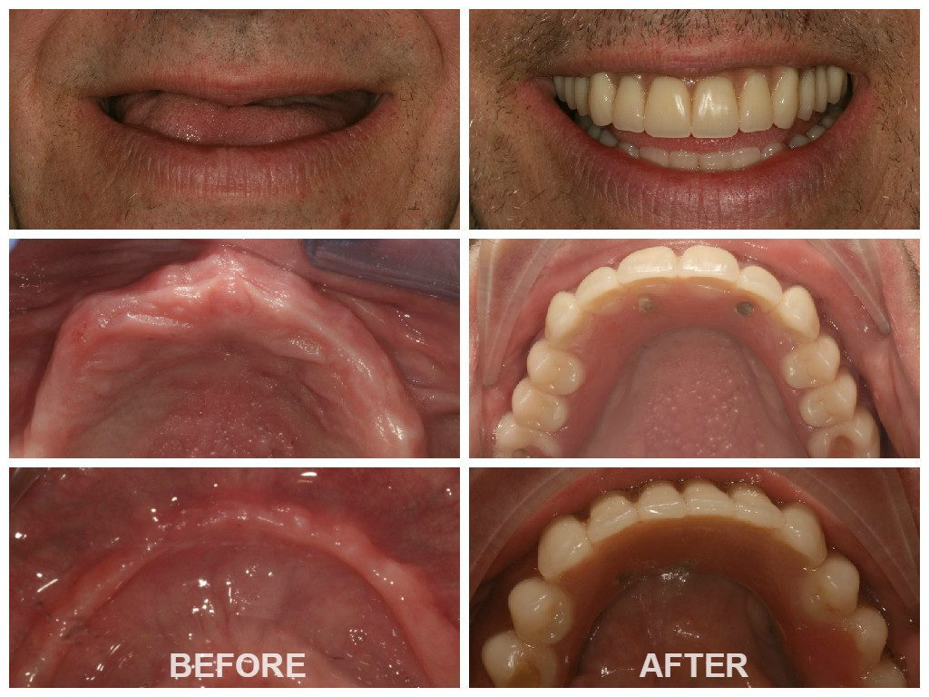 Before and After Zygomatic Arch Implants London