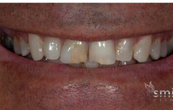 Before composite veneers london dentist