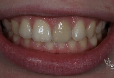 internal tooth whitening finchley dentist before