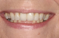 Dental Treatment London Before