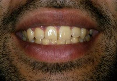 Tooth Whitening in London Before