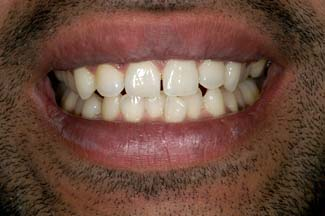 Tooth Whitening in London After