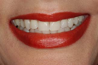 Teeth Bleaching After