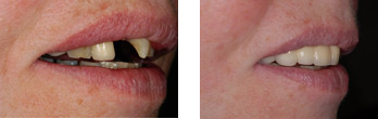 Dental Bridge treatment in London Before and After