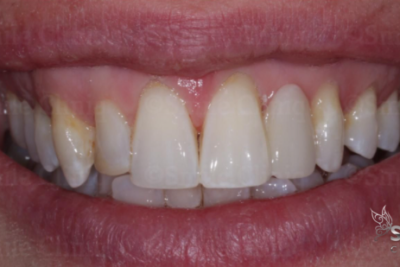 after ceramic bridge finchley dentist