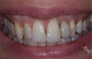 before ceramic bridge finchley dentist