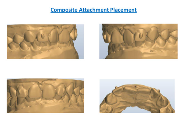 Composite Attachment Placement
