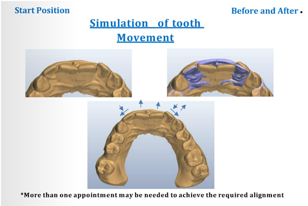 Simulation of tooth movement