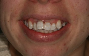 internal_whitening_london_after
