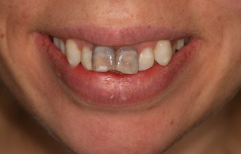 internal_whitening_london_before