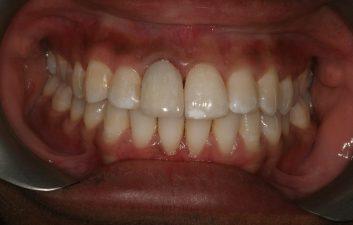 dental_crown_london_after