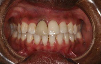 dental_crown_london_before
