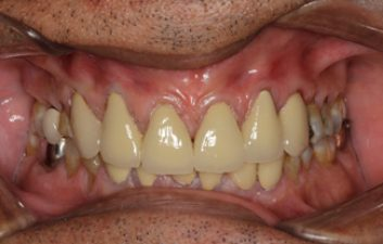 dental-crowns-after