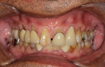 dental-crowns-before