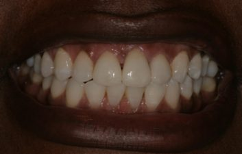 dental-crowns-london-after