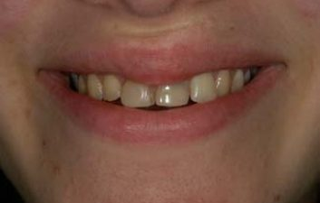 dental-crowns-london-before