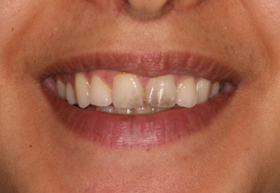 dental_hygiene_london_before