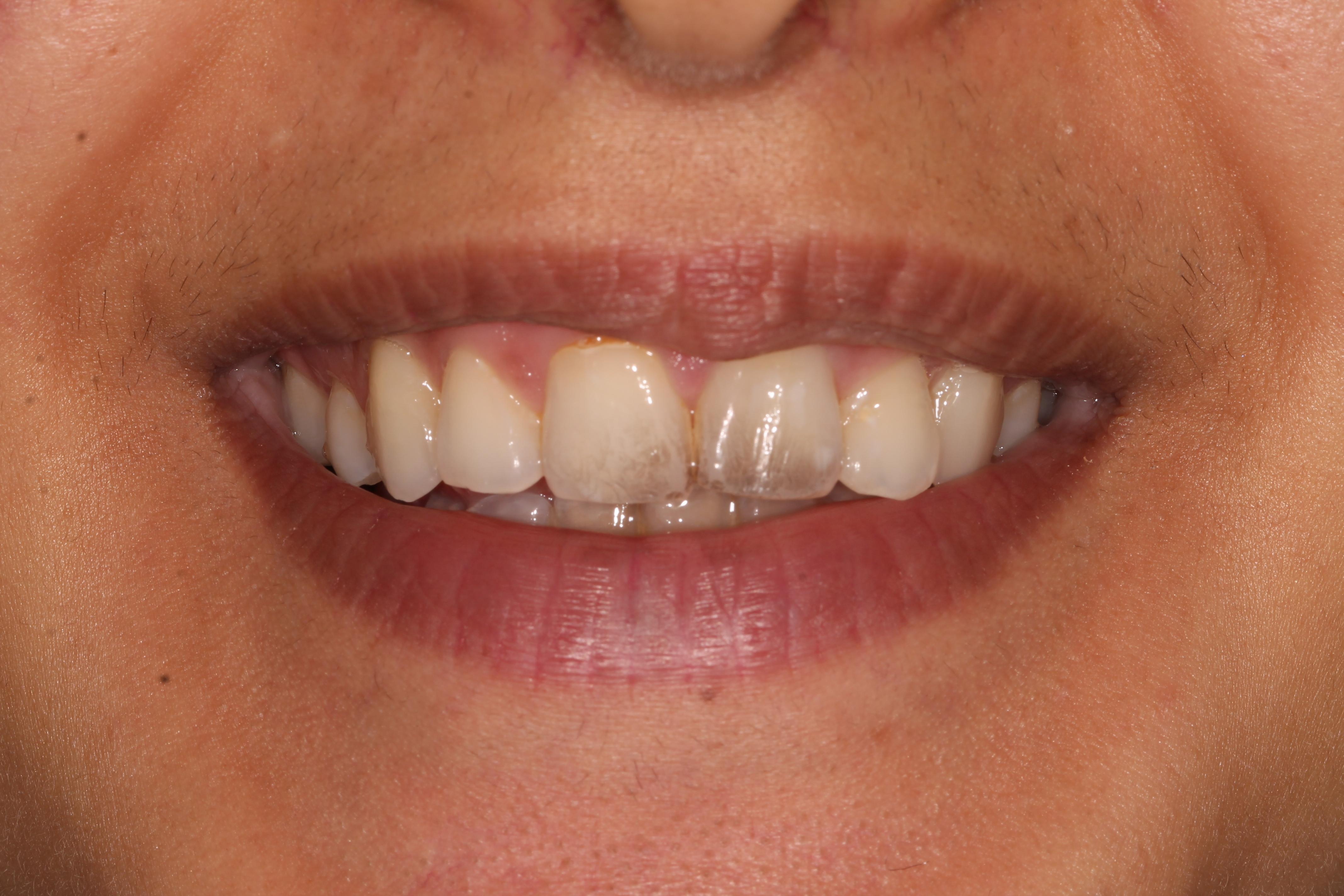 dental_hygiene_london_before