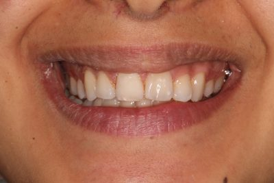 dental_hygiene_london_after