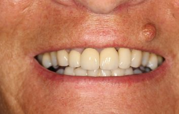 dental_implant_london_after