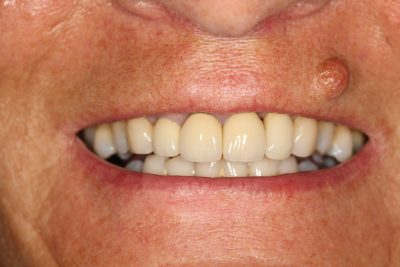 implant_london_after