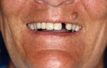 dental_implant_london_before