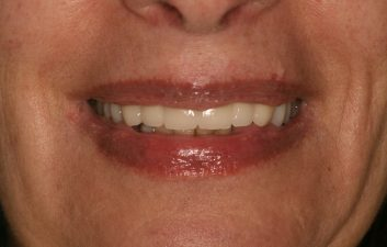 Dental Implants in London After