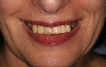 Dental Implants in London Before
