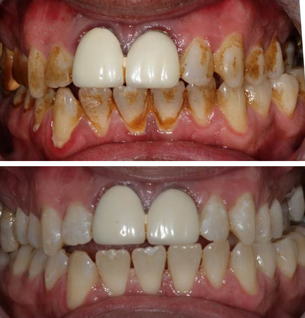 Dental hygiene before and after