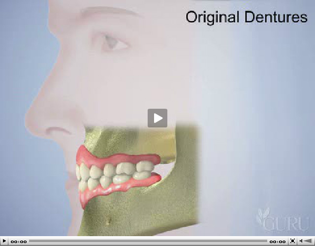 Positive Effects of Denture Replacement