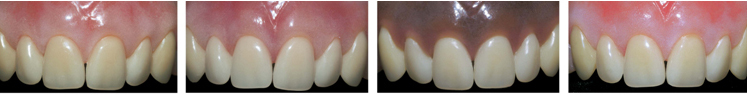 Enigma Cosmetic Denture System for individual colouring