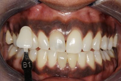 Enlighten Tooth Whitening After