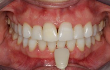 enlighten-tooth-whitening-after