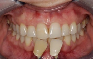 enlighten-tooth-whitening-dentist-after