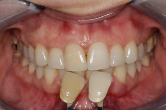 Enlighten Tooth Whitening Before