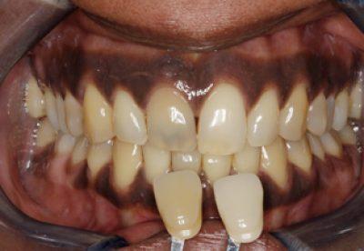 Enlighten Tooth Whitening Before
